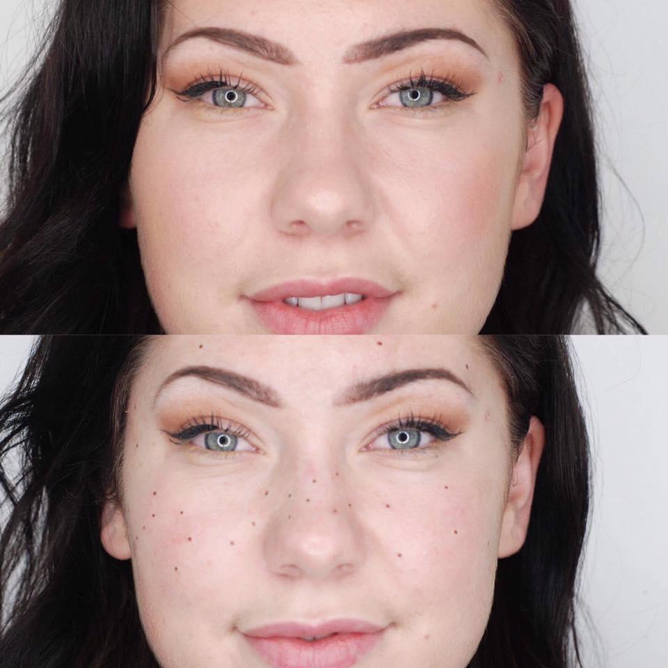 frecklesbeforeandafter